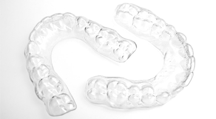 Bock Orthodontics - Retainers